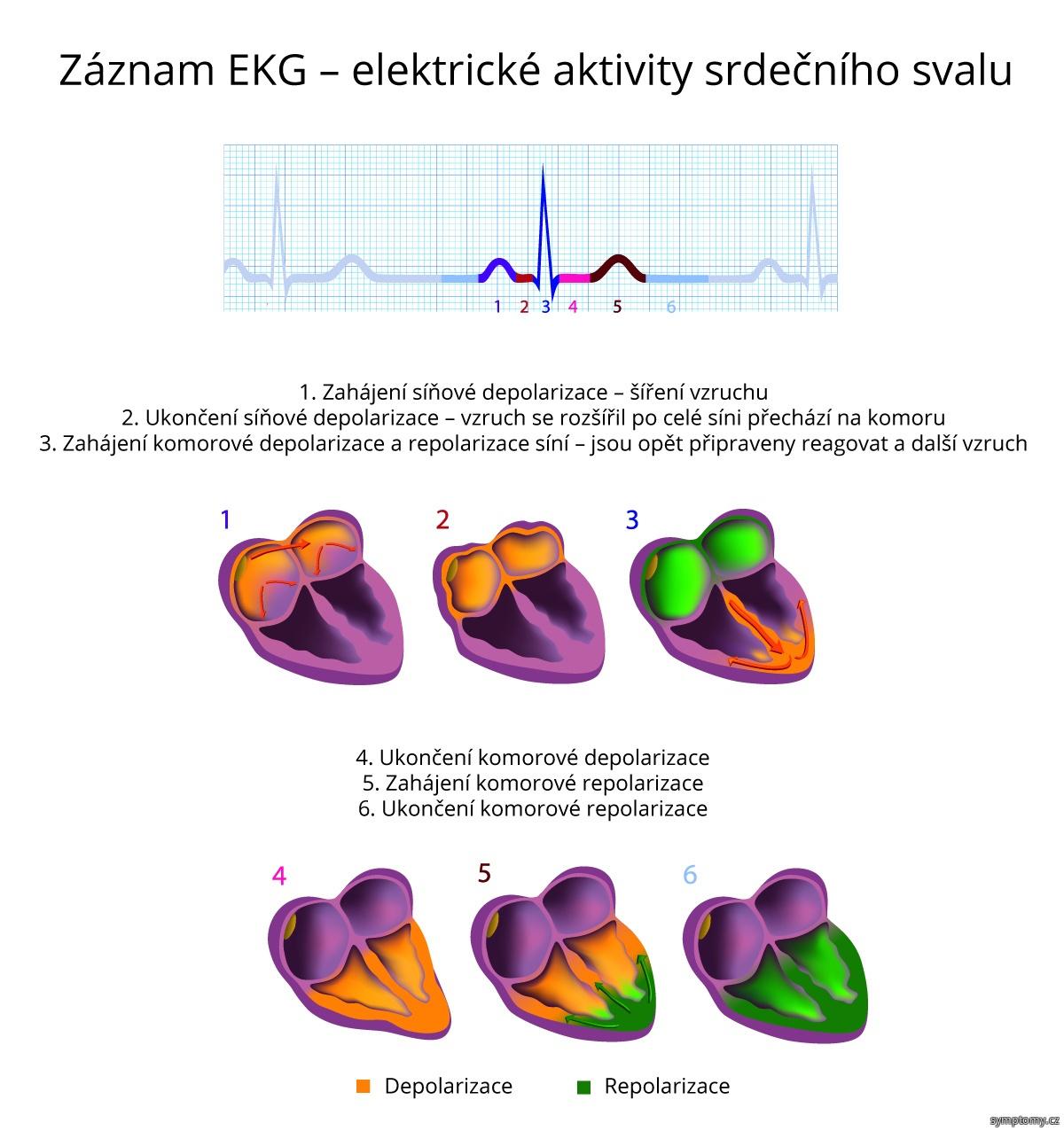Záznam EKG - elektrické aktivity srdečního svalu