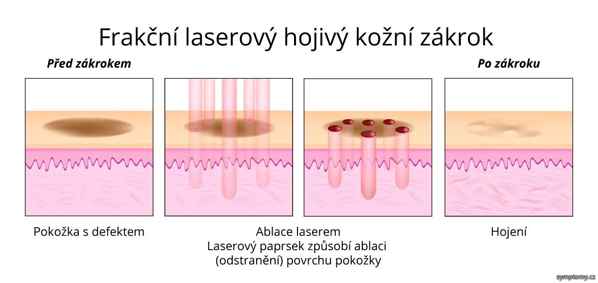 Frakční laserový hojivý kožní zákrok