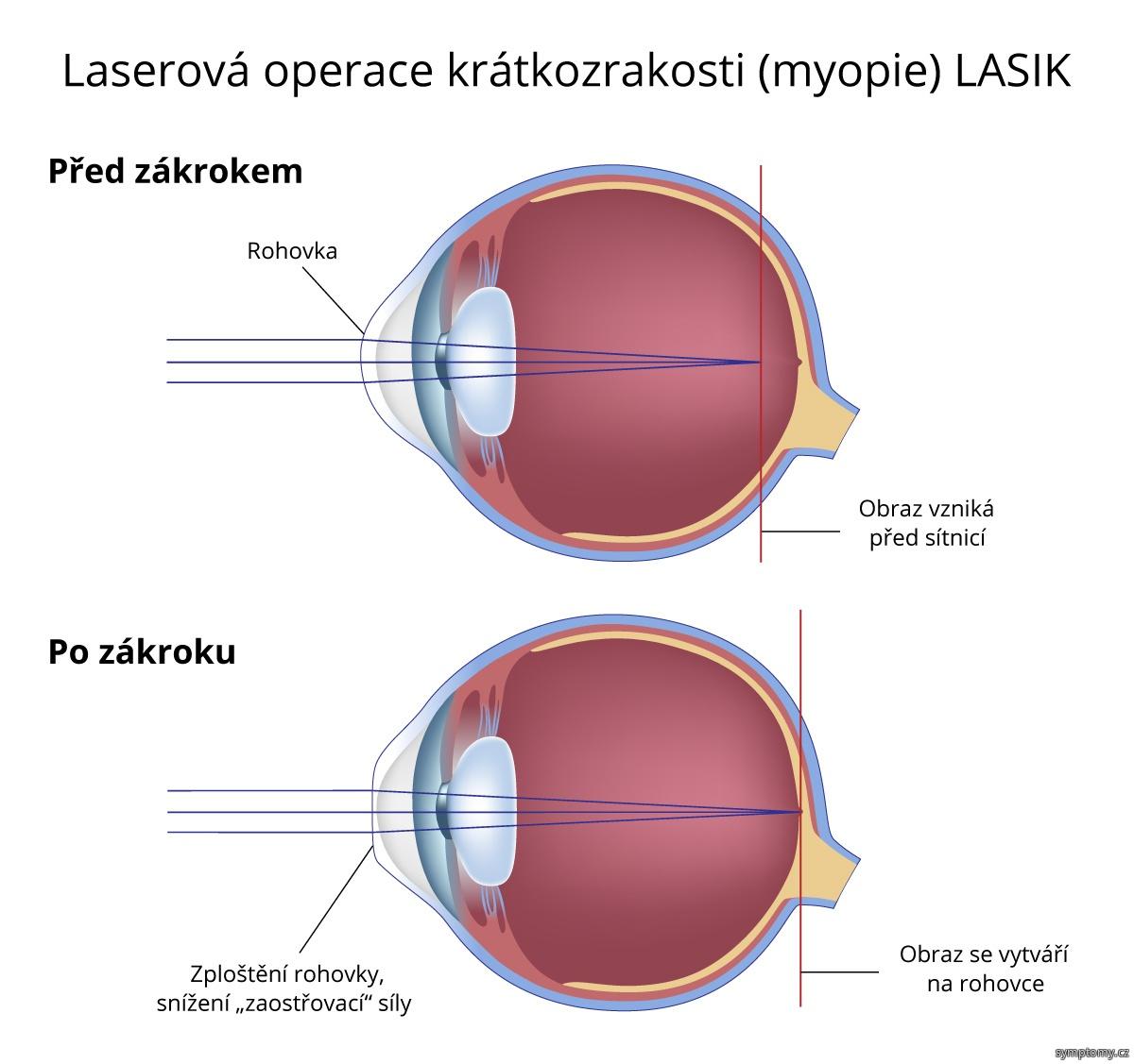 Laserová operace krátkozrakosti (myopie) - LASIK
