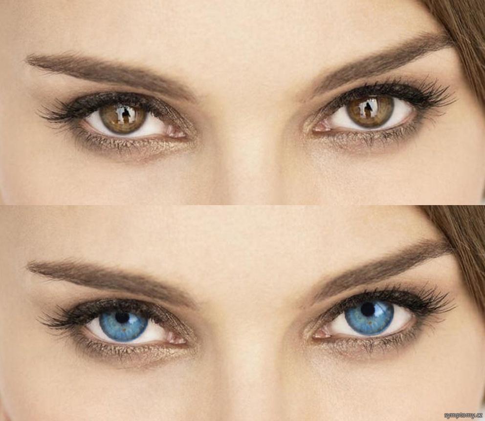 Operace - barevná korekce očí