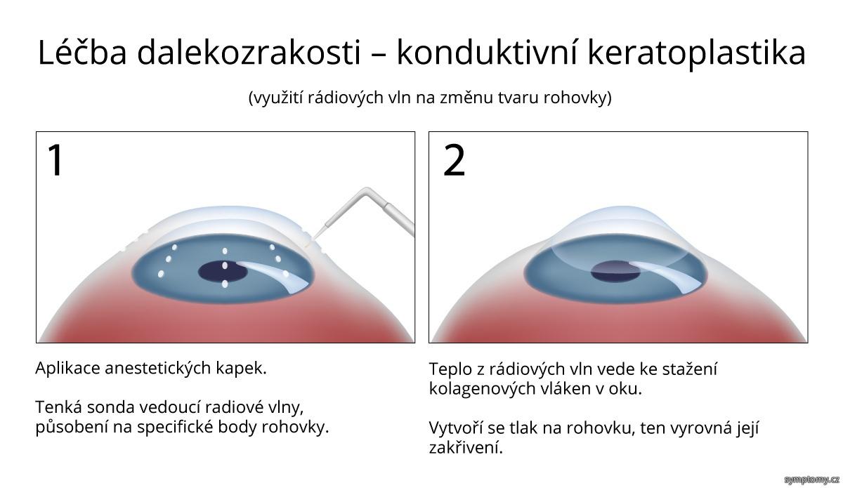 Konduktivní keratoplastika - léčba-dalekozrakosti