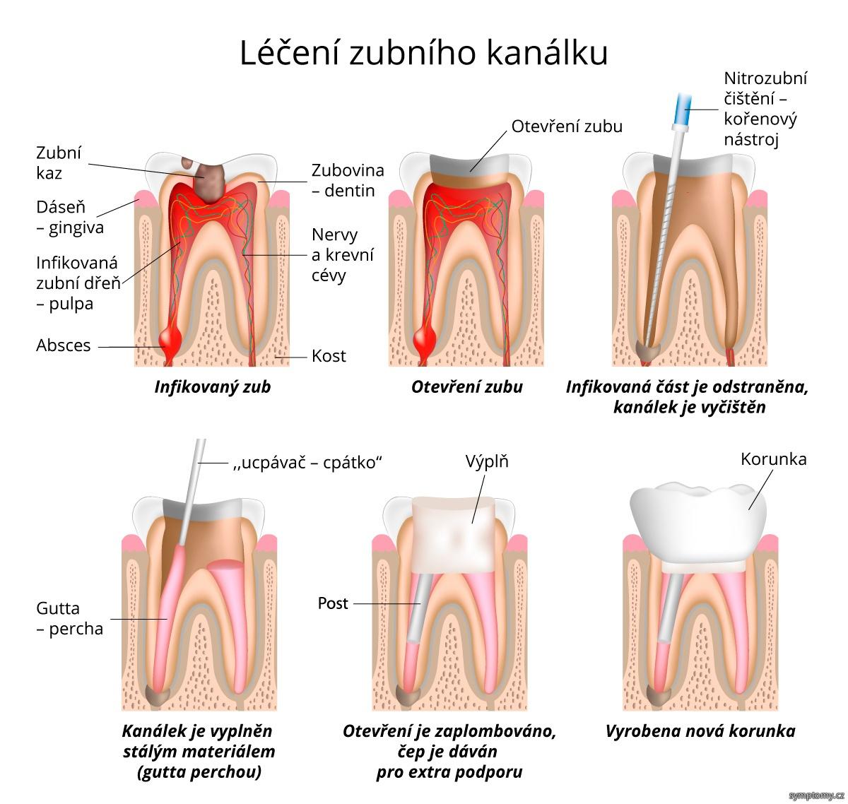 Léčení zubního kanálku, výplň, čep a korunka