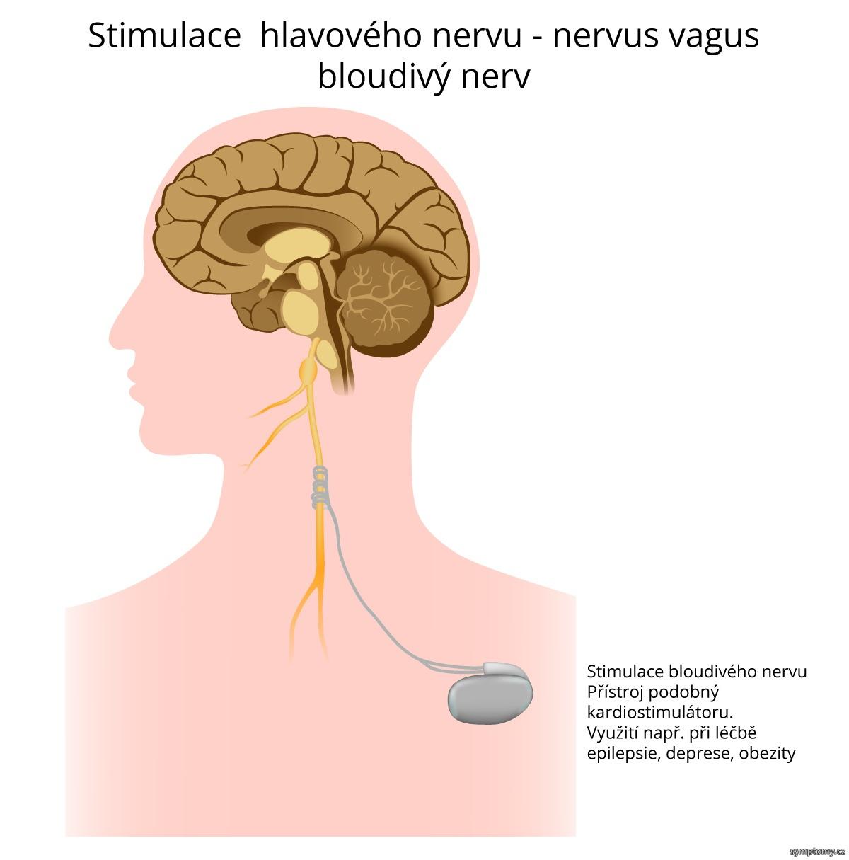 Stimulace hlavového nervu nervus vagus - bloudivý nerv