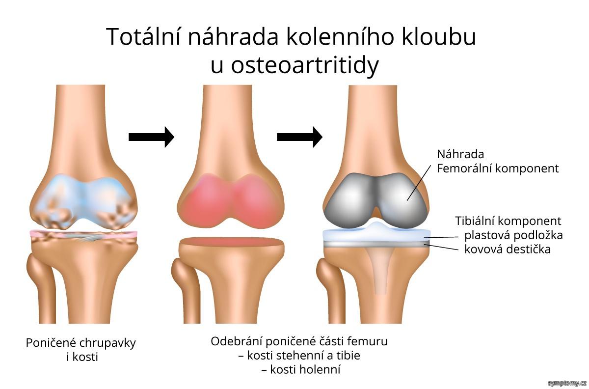 Totální náhrada kolenního kloubu u osteoartritidy