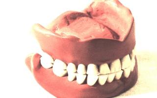 Zubní náhrady